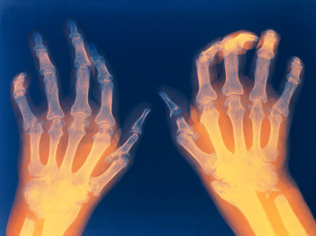 Top Tips To Naturally And Frugally Heal Rheumatoid Arthritis